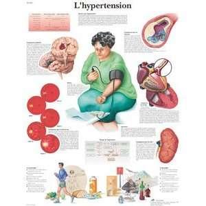 hypertension (French) 125 Micron, 2 metal eyelets: